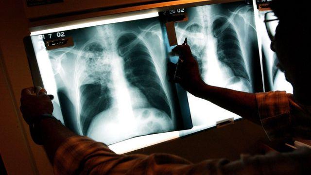 туберкульоз україна, в україні туберкульоз
